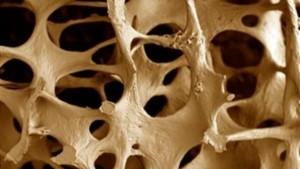 osteoporose1
