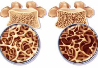 Osteoporose e Osteopenia na Fibrose Cística