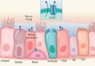 Um novo tipo de célula pode mudar o foco da pesquisa sobre a Fibrose Cística