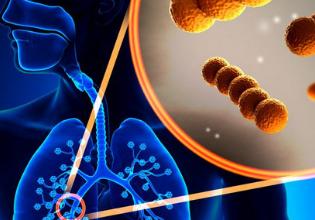 Rapidez no tratamento das infecções pulmonares: fator fundamental para o combate das bactérias