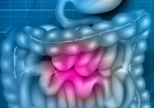 Novas Terapias para Insuficiência Pancreática em Pessoas com Fibrose Cística