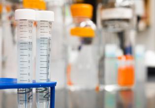 Teste do Suor específico identifica com maior precisão o efeito do Kalydeco na proteína CFTR